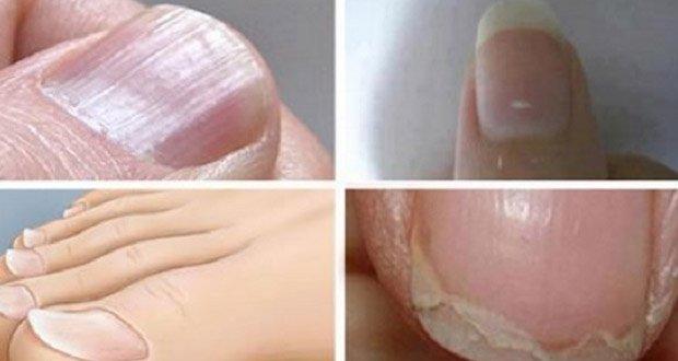 voici-ce-que-representent-les-lignes-blanches-sur-vos-ongles1