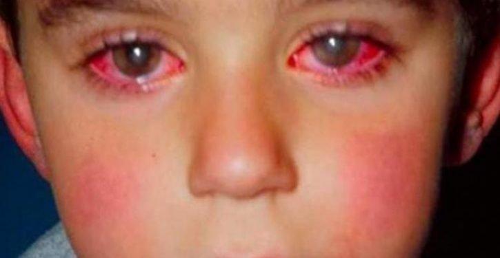 Un-enfant-a-perdu-75-de-sa-vision-a-cause-dun-objet-que-vous-avez-certainement-chez-vous-725x375