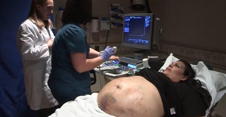 Le-ventre-dune-femme-enceinte-est-couvert-de-bleus-1-725x375